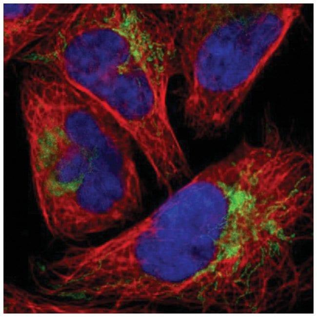 FbxL12 Rabbit anti-Human, Polyclonal, Novus Biologicals 100µL; Unlabeled