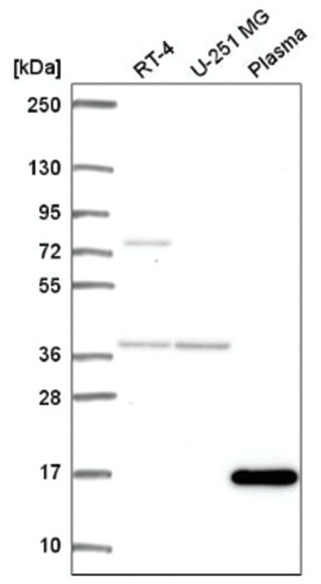 FOXL2NB Rabbit anti-Human, Polyclonal, Novus Biologicals 100µL; Unlabeled