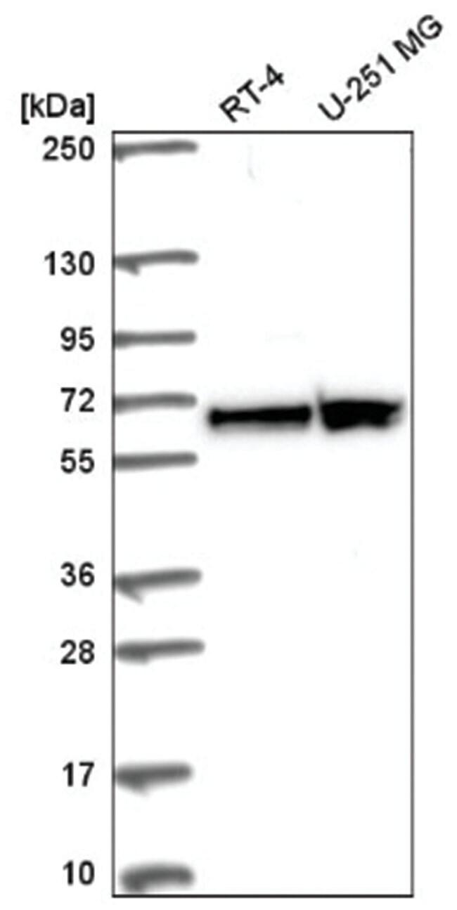 FUBP3 Rabbit anti-Human, Polyclonal, Novus Biologicals 100µL; Unlabeled