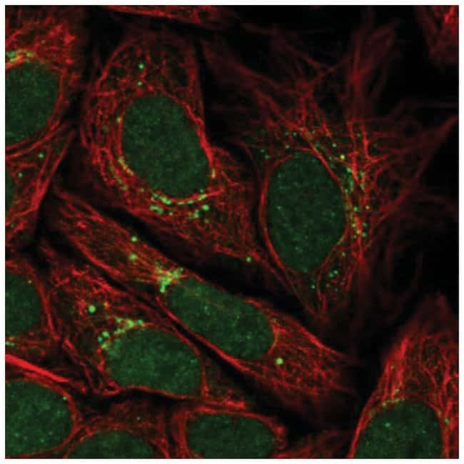 G5pr Rabbit anti-Human, Polyclonal, Novus Biologicals 100µL; Unlabeled