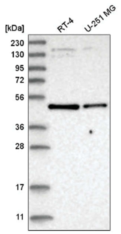 Glut2 Rabbit anti-Human, Polyclonal, Novus Biologicals 100µL; Unlabeled
