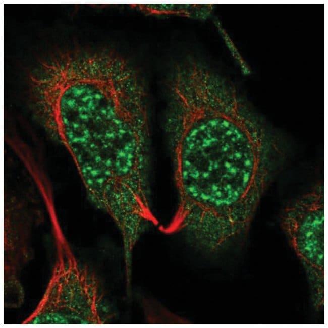 GNB5 Rabbit anti-Human, Polyclonal, Novus Biologicals 100µL; Unlabeled
