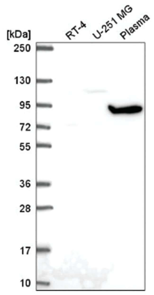 GNL2 Rabbit anti-Human, Polyclonal, Novus Biologicals 100µL; Unlabeled
