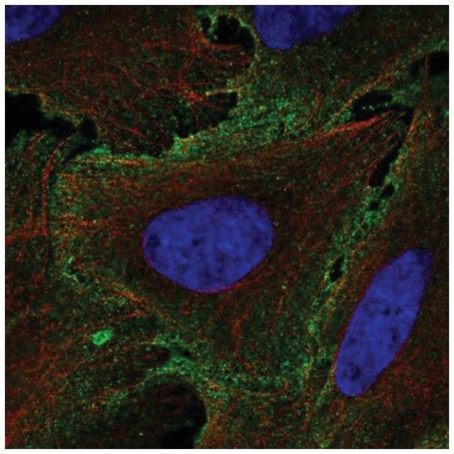 IL-12 R beta 1 Rabbit anti-Human, Polyclonal, Novus Biologicals 100µL;