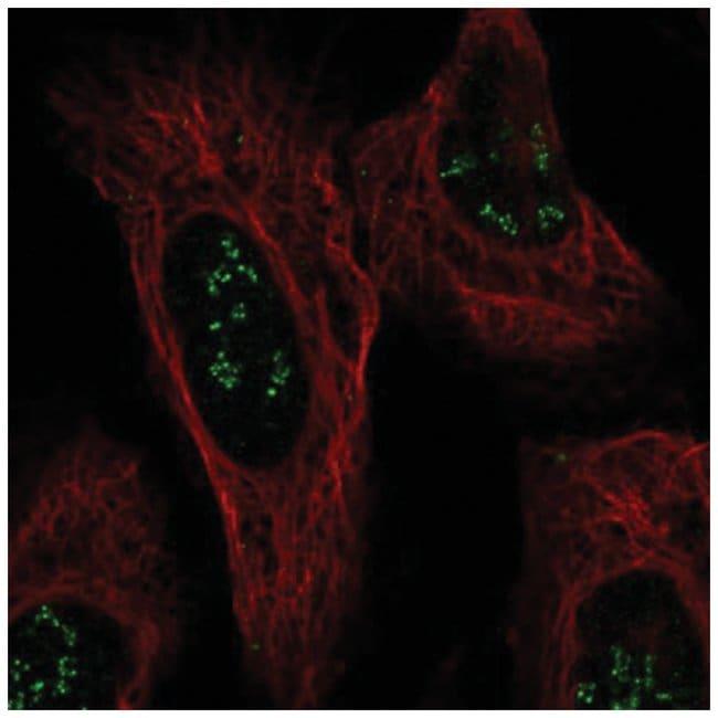 ISPD Rabbit anti-Human, Polyclonal, Novus Biologicals 100µL; Unlabeled