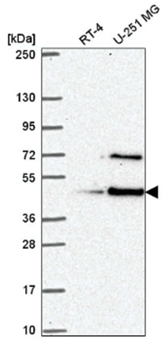 LUC7L Rabbit anti-Human, Polyclonal, Novus Biologicals 100µL; Unlabeled