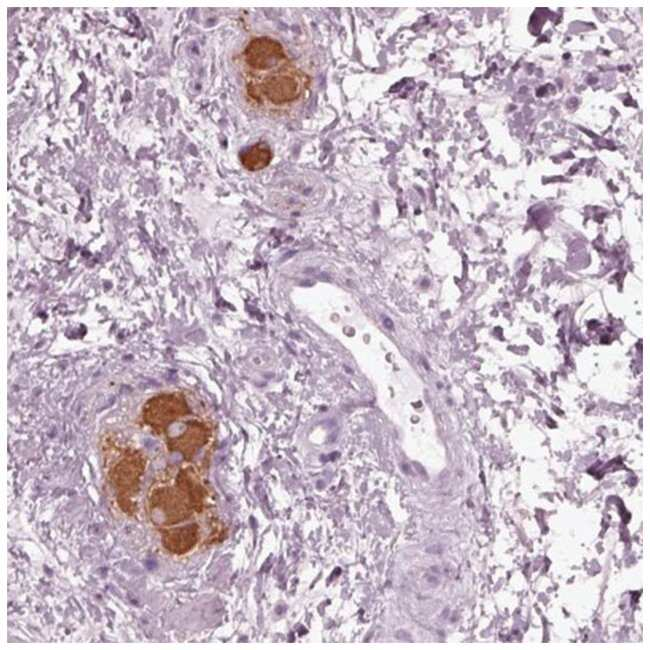 mGluR6 Rabbit anti-Human, Polyclonal, Novus Biologicals 100µL; Unlabeled