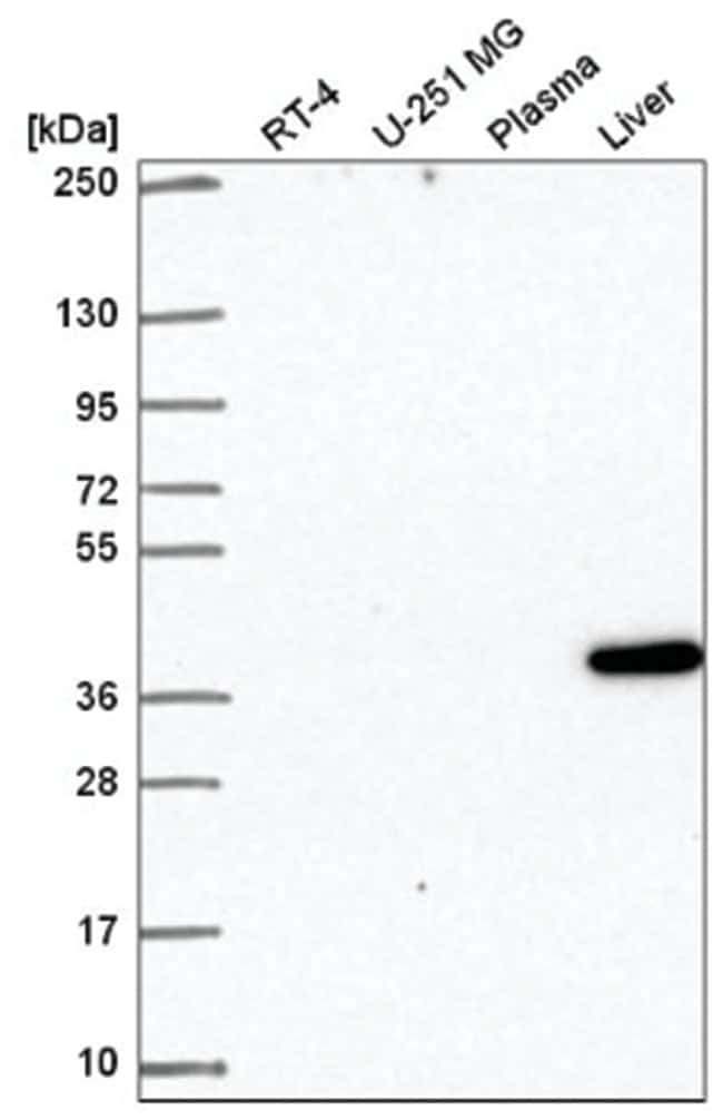 Mindin/Spondin-2 Rabbit anti-Human, Polyclonal, Novus Biologicals 100µL;