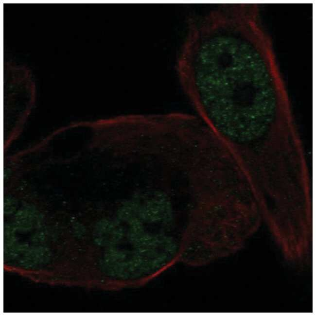 Mineralocorticoid R/NR3C2 Rabbit anti-Human, Polyclonal, Novus Biologicals