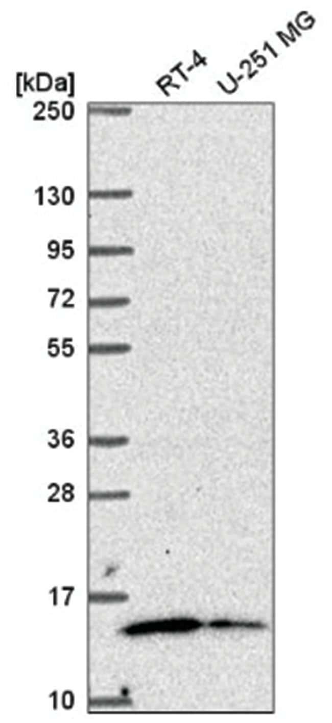 MRP63 Rabbit anti-Human, Polyclonal, Novus Biologicals 100µL; Unlabeled
