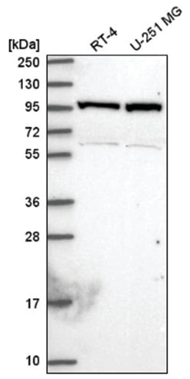 NARG1 Rabbit anti-Human, Polyclonal, Novus Biologicals 100µL; Unlabeled