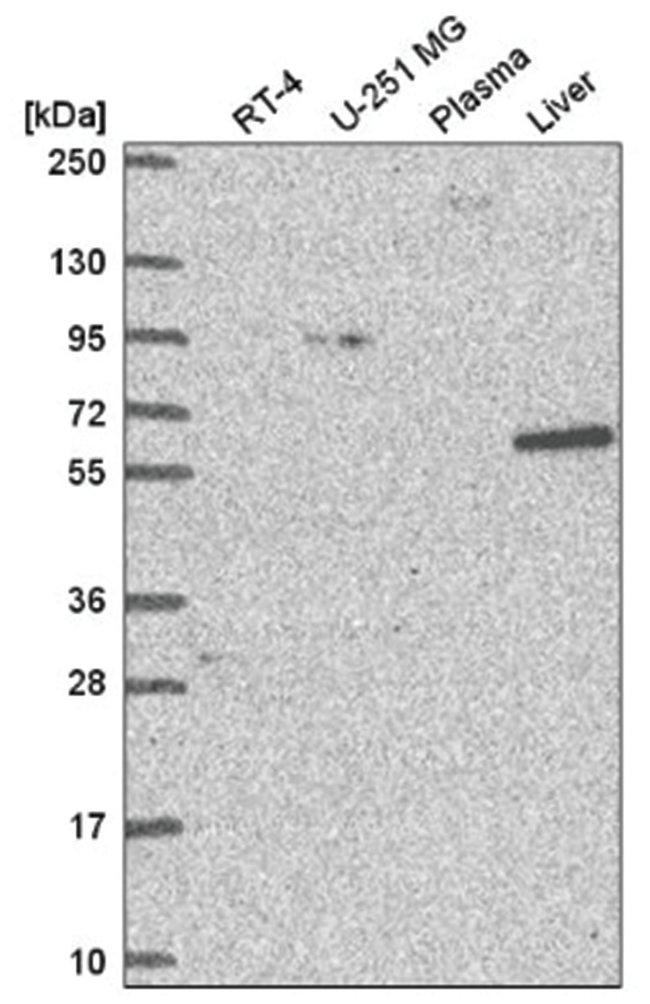 NCAPH2 Rabbit anti-Human, Polyclonal, Novus Biologicals 100µL; Unlabeled