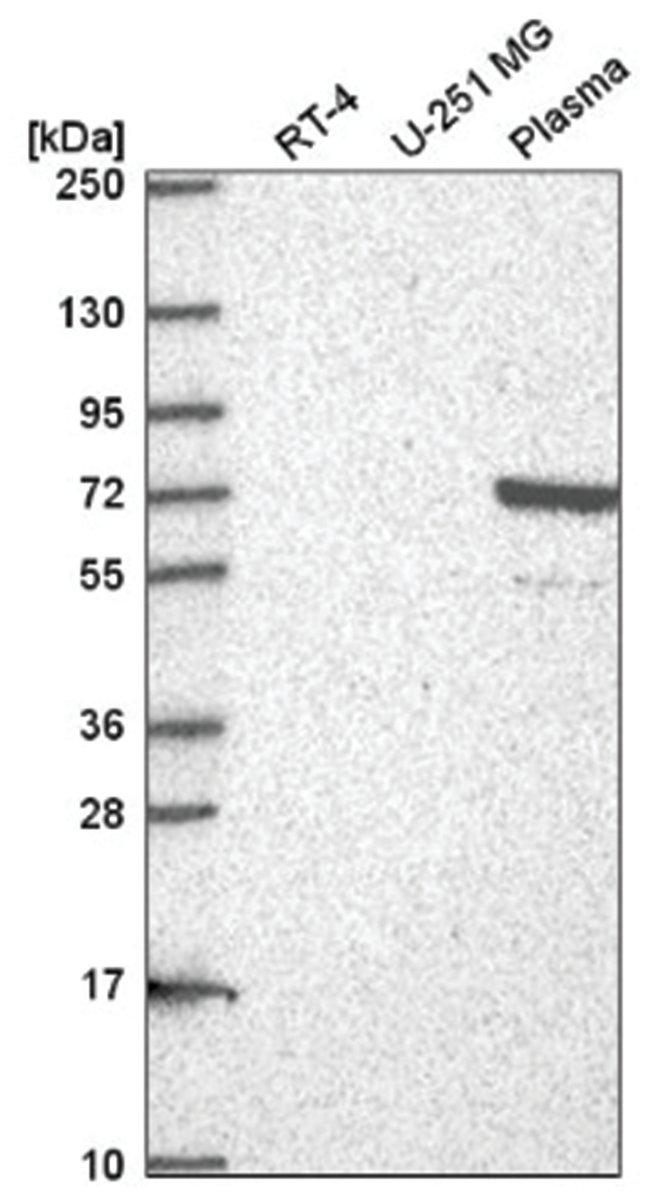 NFATC1/NFAT2 Rabbit anti-Human, Polyclonal, Novus Biologicals 100µL;