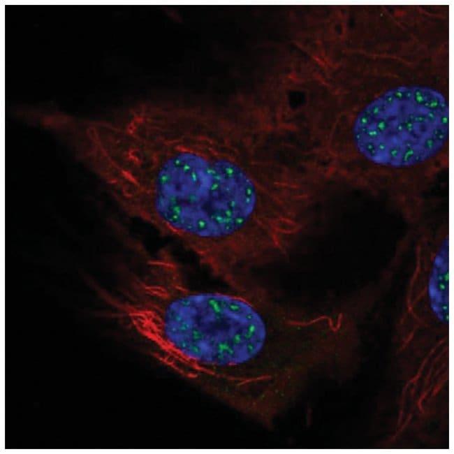 NFATC4 Rabbit anti-Human, Polyclonal, Novus Biologicals 100µL; Unlabeled
