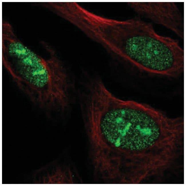 NOC3L Rabbit anti-Human, Polyclonal, Novus Biologicals 100µL; Unlabeled
