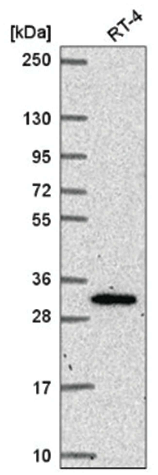 NRIP3 Rabbit anti-Human, Polyclonal, Novus Biologicals 100µL; Unlabeled