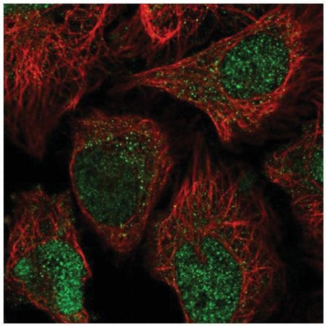 OBFC2B Rabbit anti-Human, Polyclonal, Novus Biologicals 100µL; Unlabeled
