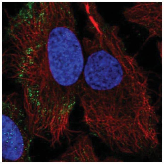 PARVB Rabbit anti-Human, Polyclonal, Novus Biologicals 100µL; Unlabeled