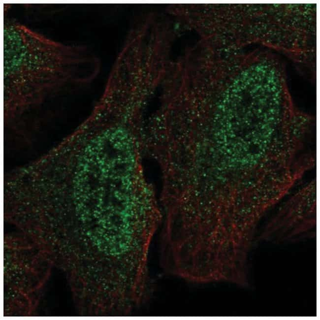 PIPPIN Rabbit anti-Human, Polyclonal, Novus Biologicals 100µL; Unlabeled
