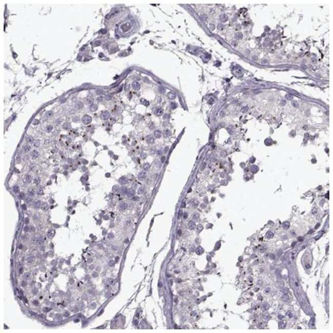 PP2D1 Rabbit anti-Human, Polyclonal, Novus Biologicals 100µL; Unlabeled
