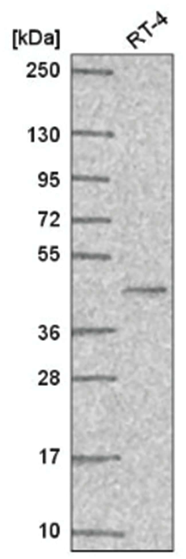 PPAR gamma/NR1C3 Rabbit anti-Human, Polyclonal, Novus Biologicals 100µL;