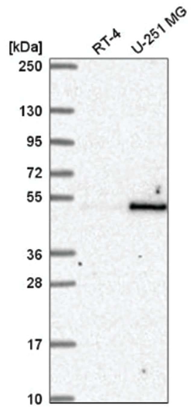 RBMS1 Rabbit anti-Human, Polyclonal, Novus Biologicals 100µL; Unlabeled