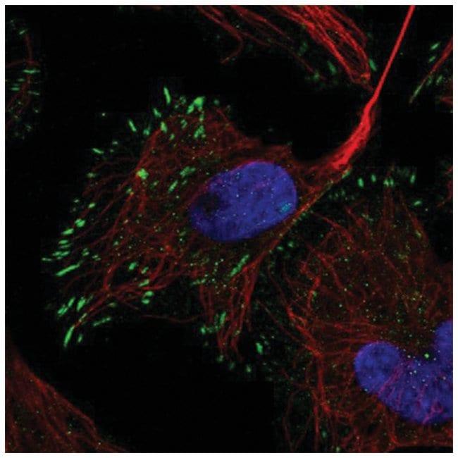 Reelin Rabbit anti-Human, Polyclonal, Novus Biologicals 100µL; Unlabeled