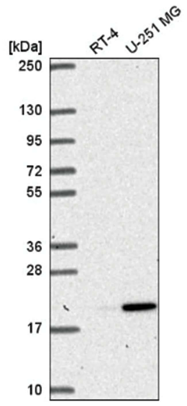 RNASEH2C Rabbit anti-Human, Polyclonal, Novus Biologicals 100µL; Unlabeled