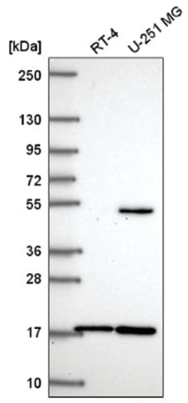 RNF13 Rabbit anti-Human, Polyclonal, Novus Biologicals 100µL; Unlabeled