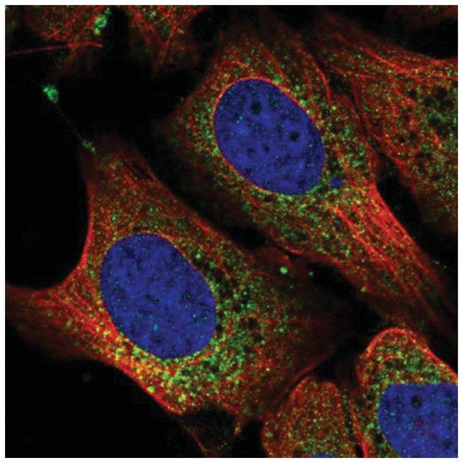RPL11 Rabbit anti-Human, Polyclonal, Novus Biologicals 100µL; Unlabeled