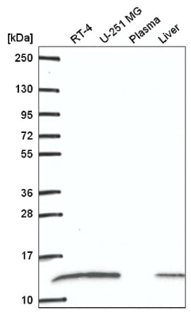 RPS27L Rabbit anti-Human, Polyclonal, Novus Biologicals 100µL; Unlabeled