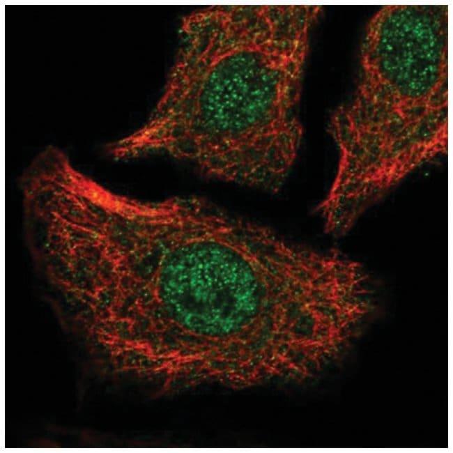 SERCA2 ATPase Rabbit anti-Human, Polyclonal, Novus Biologicals 100µL;