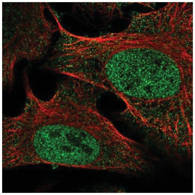 SETDB2 Rabbit anti-Human, Polyclonal, Novus Biologicals 100µL; Unlabeled