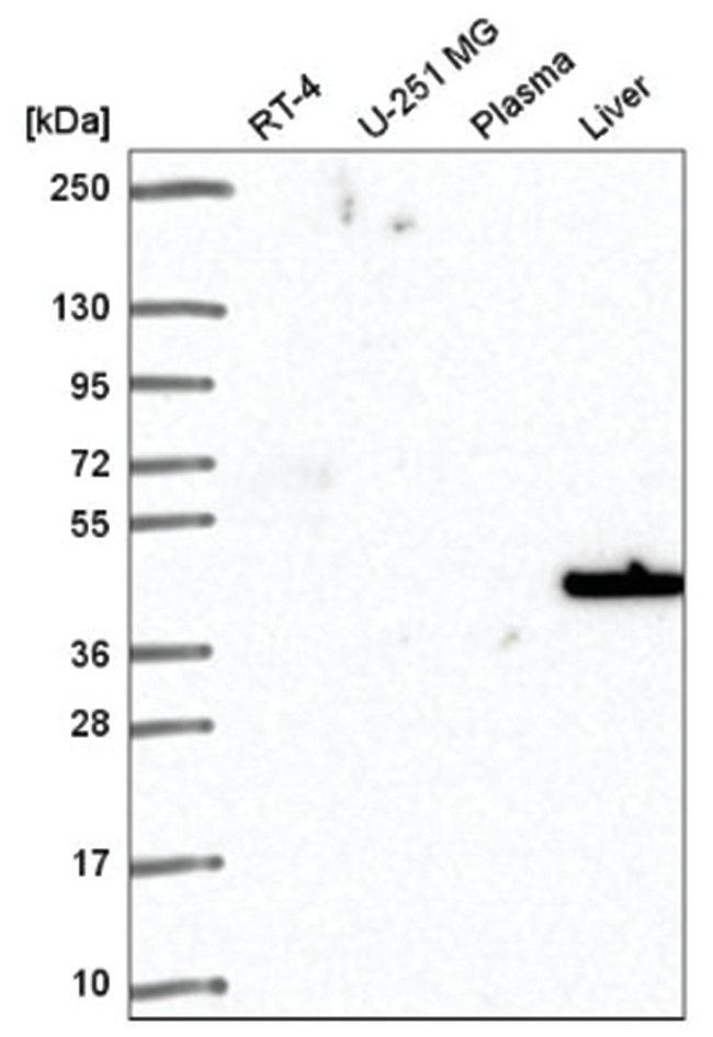SLC14A1 Rabbit anti-Human, Polyclonal, Novus Biologicals 100µL; Unlabeled