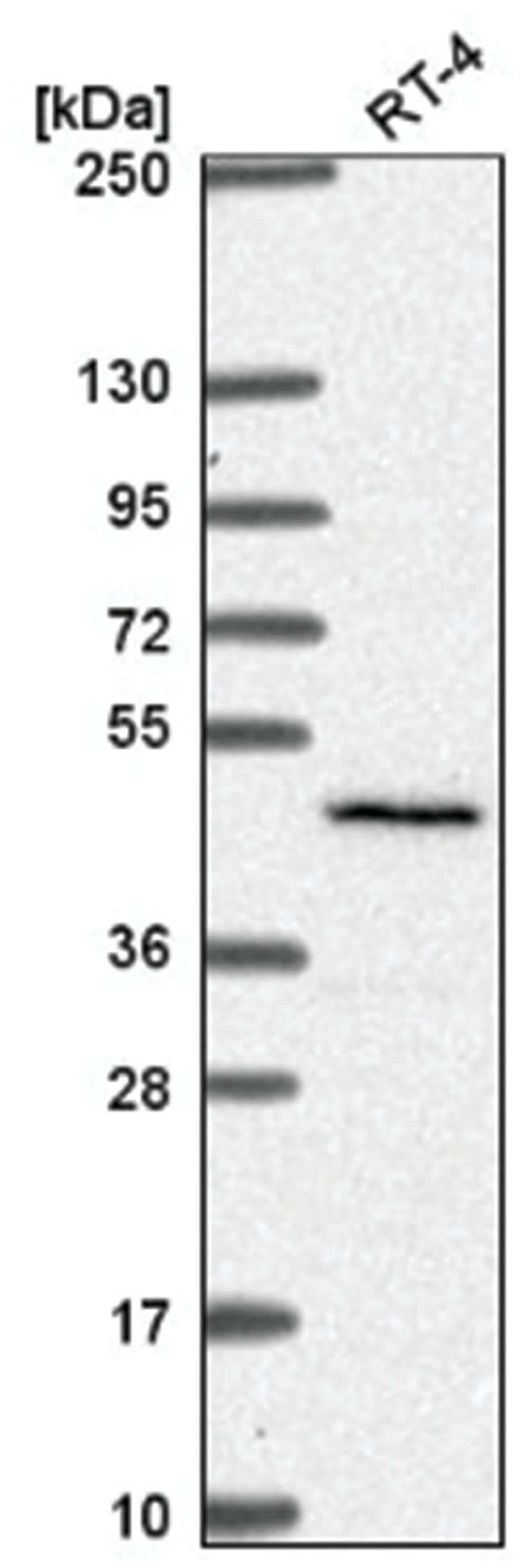 SLC29A3 Rabbit anti-Human, Polyclonal, Novus Biologicals 100µL; Unlabeled
