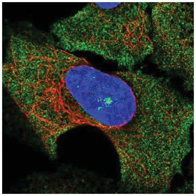 SOCS-3 Rabbit anti-Human, Polyclonal, Novus Biologicals 100µL; Unlabeled