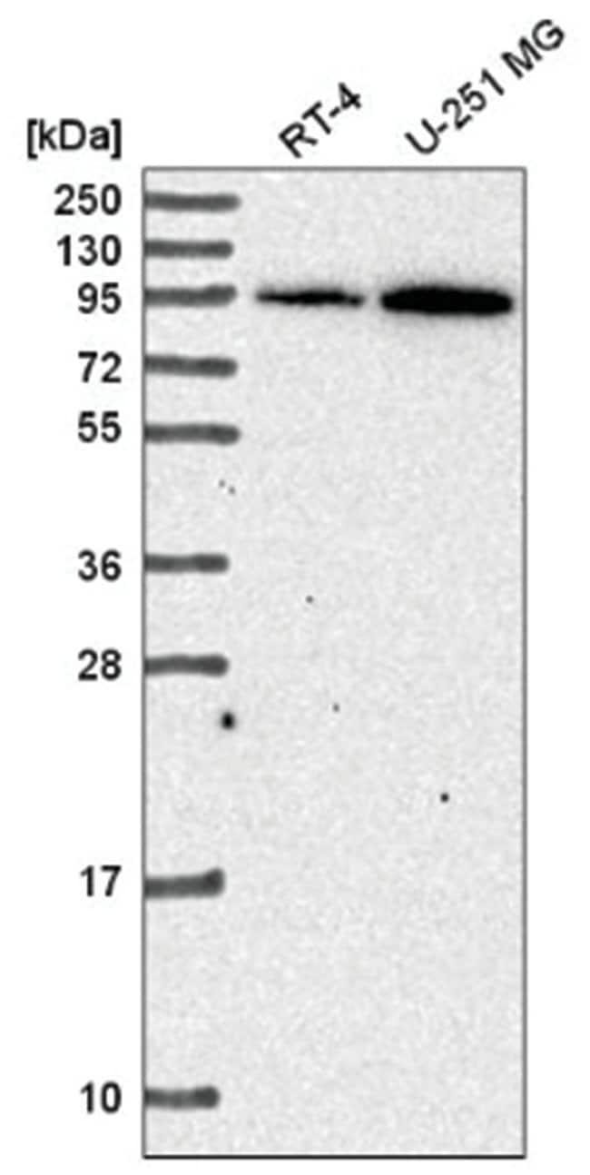 TACE/ADAM17 Rabbit anti-Human, Polyclonal, Novus Biologicals 100µL;
