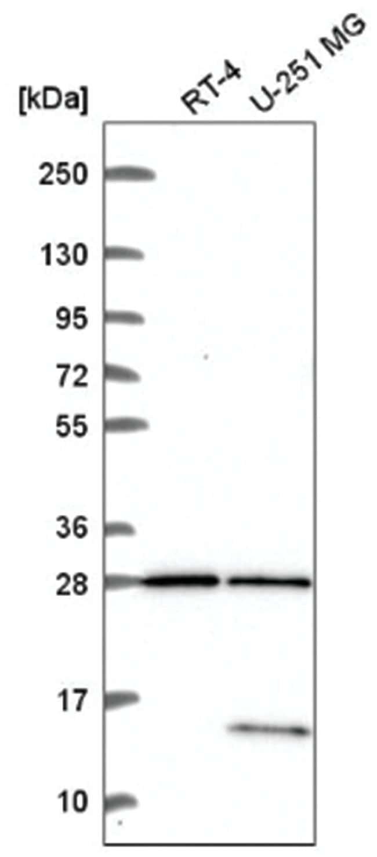 TBC1D16 Rabbit anti-Human, Polyclonal, Novus Biologicals 100µL; Unlabeled