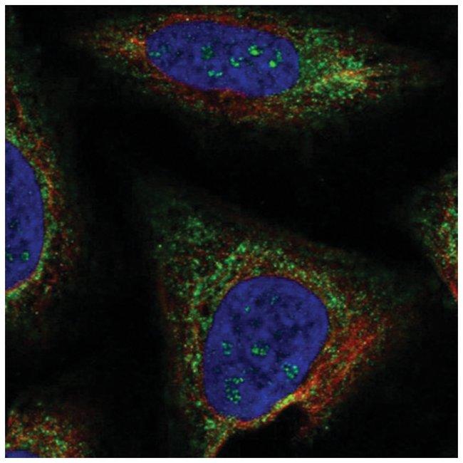 TMEM212 Rabbit anti-Human, Polyclonal, Novus Biologicals 100µL; Unlabeled