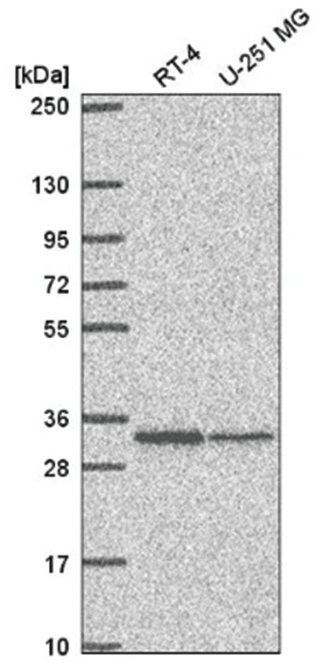 TMEM81 Rabbit anti-Human, Polyclonal, Novus Biologicals 100µL; Unlabeled
