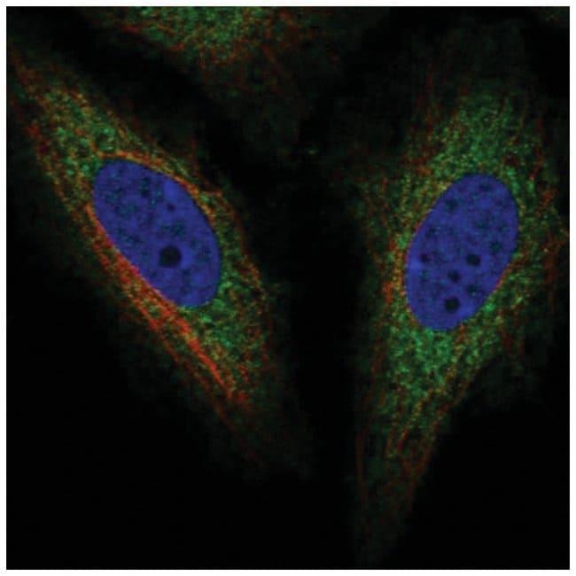 TOR1AIP2 Rabbit anti-Human, Polyclonal, Novus Biologicals 100µL; Unlabeled