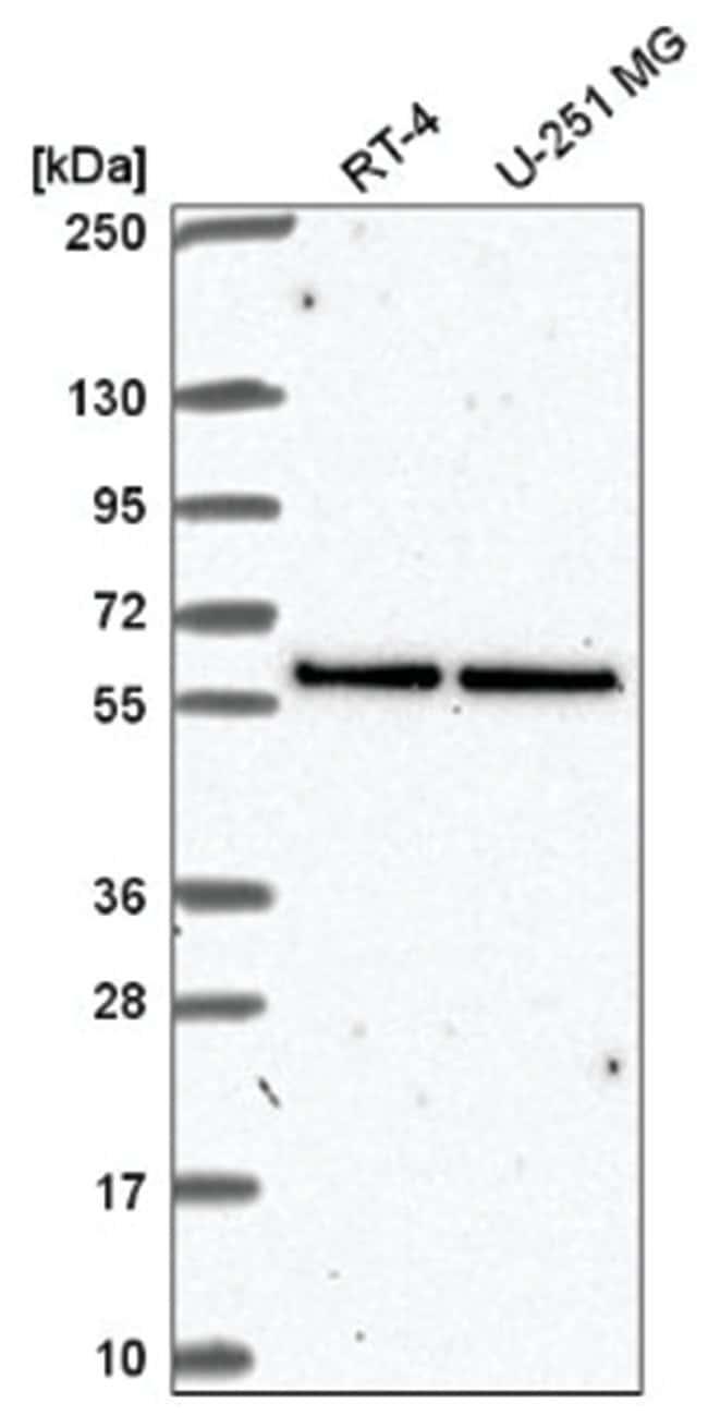 UBXN6 Rabbit anti-Human, Polyclonal, Novus Biologicals 100µL; Unlabeled