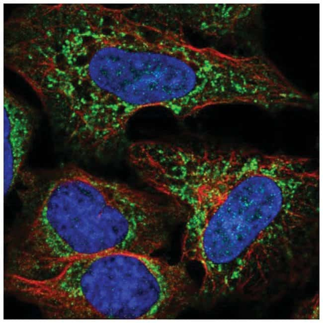 UCP4 Rabbit anti-Human, Polyclonal, Novus Biologicals 100µL; Unlabeled