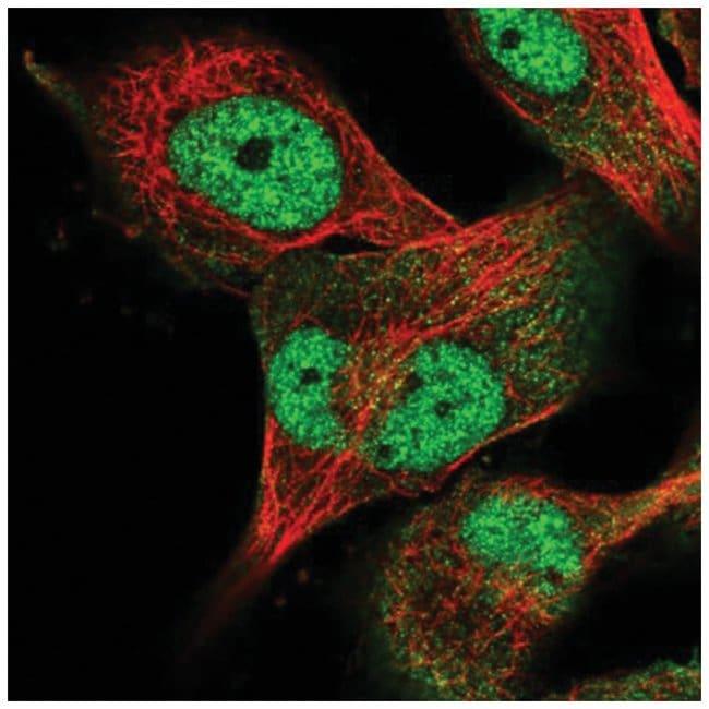 USP24 Rabbit anti-Human, Polyclonal, Novus Biologicals 100µL; Unlabeled