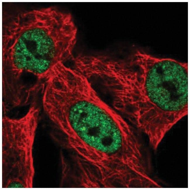 USP42 Rabbit anti-Human, Polyclonal, Novus Biologicals 100µL; Unlabeled