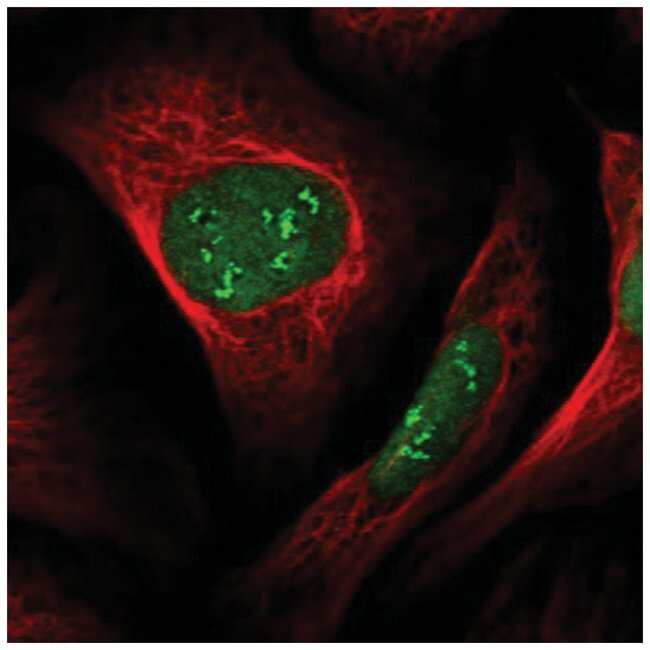 VprBP Rabbit anti-Human, Polyclonal, Novus Biologicals 100µL; Unlabeled