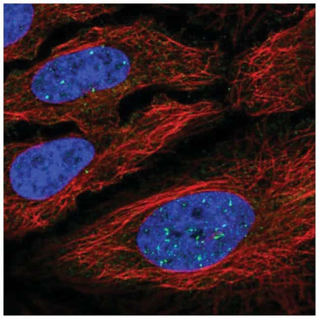 YY2 Rabbit anti-Human, Polyclonal, Novus Biologicals 100µL; Unlabeled