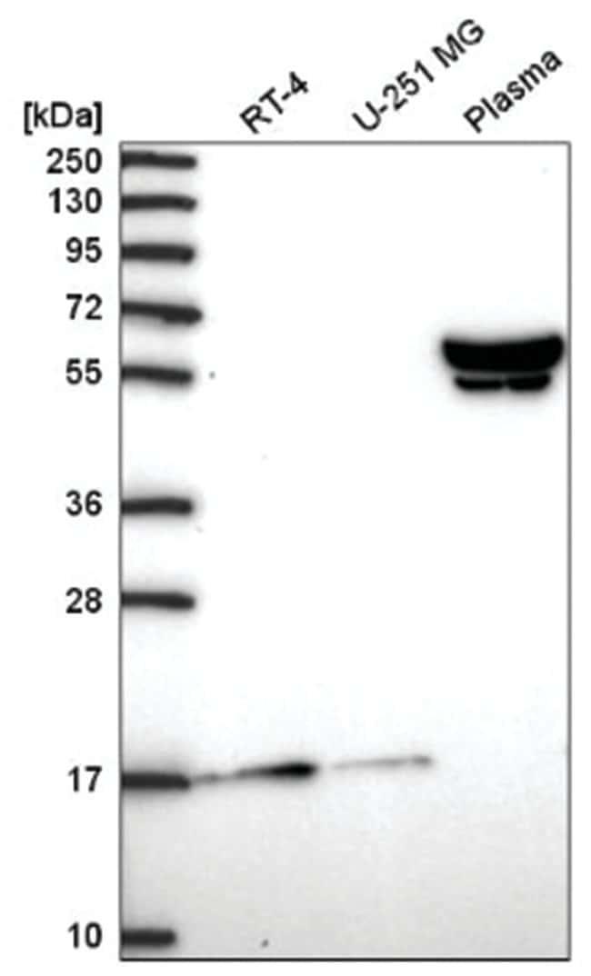 ZNF317 Rabbit anti-Human, Polyclonal, Novus Biologicals 100µL; Unlabeled