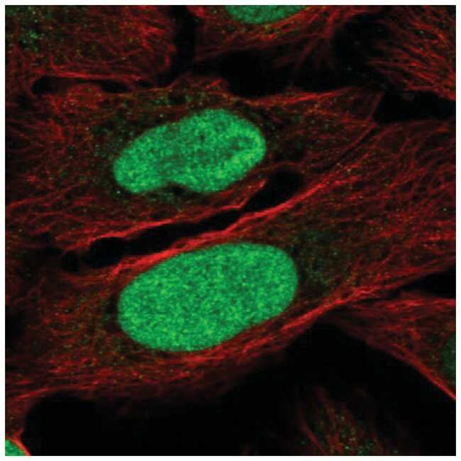 ZNF776 Rabbit anti-Human, Polyclonal, Novus Biologicals 100µL; Unlabeled