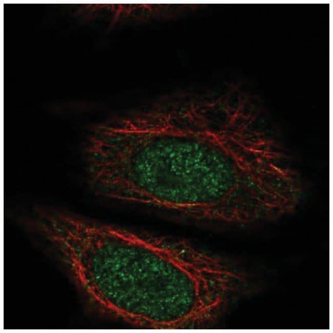 ZYG11A Rabbit anti-Human, Polyclonal, Novus Biologicals 100µL; Unlabeled